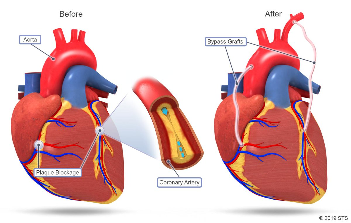 Coronary artery bypass surgeries